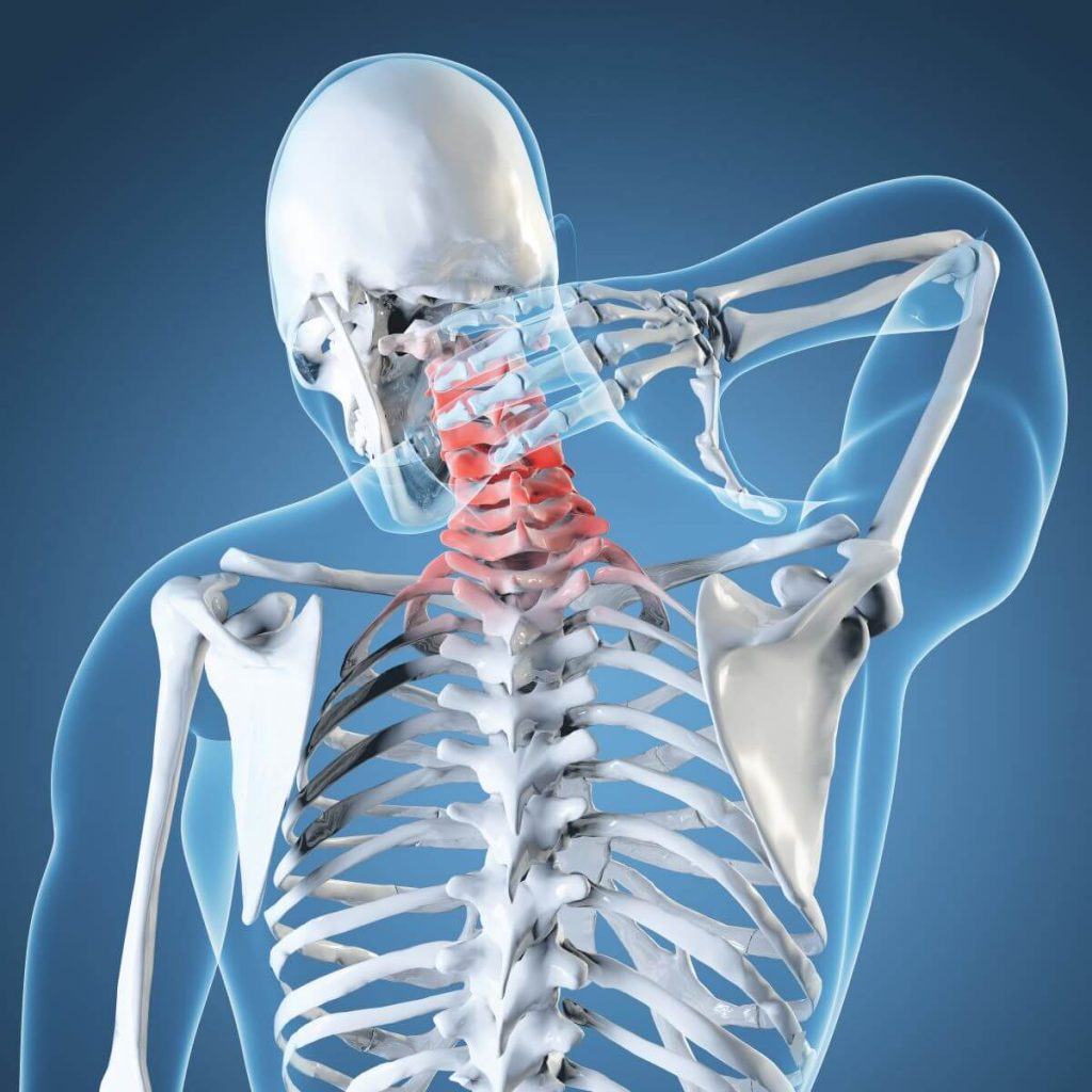 Neck Related Injuries